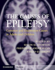The cause of Epilepsy Common and Uncommon Cause in Adults and Children Simon Shorvon