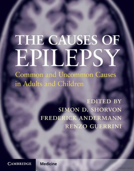 Causes of Epilepsy book cover