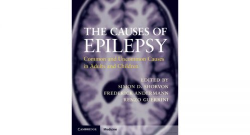 The Causes of Epilepsy: Common and Uncommon Causes in Adults and Children